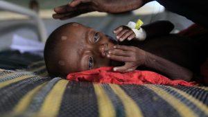 Mortalidad infantil - Fuente foto web - Data Urgente