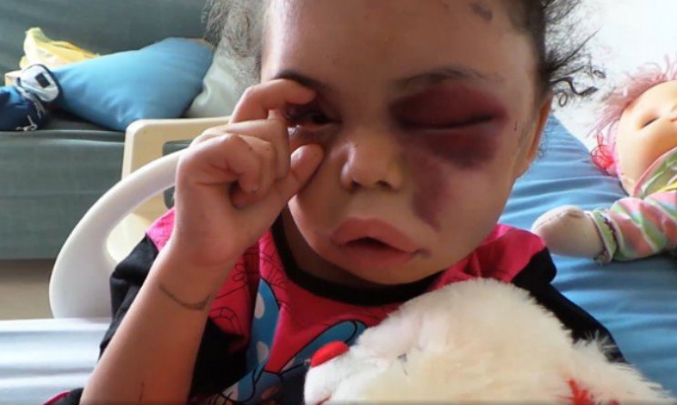 Buthaina-bambina-yemen - Fuente foto web - Data Urgente