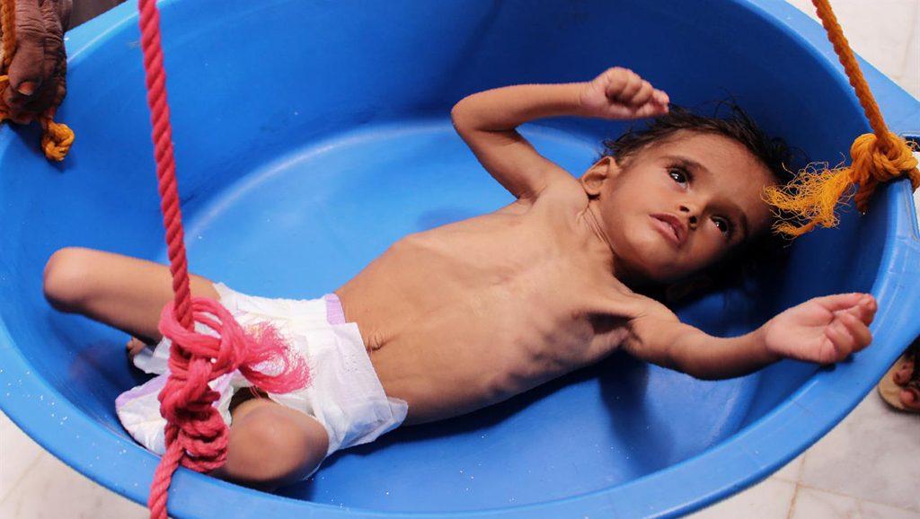 Niñx en Yemen - Fuente foto web - Data Urgente